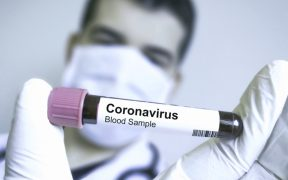CORONA VIRUS EXCLUSIVE: WHY ITALY?