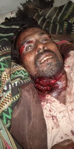 ONGOING GENOCIDE IN PAKISTAN & INDIA'S CAA (DISTURBING CONTENT)